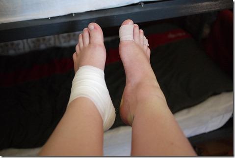 Blister, bruised, swollen feet - el Camino de Santiago, Camino Frances, Spain